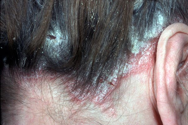 Head Psoriasis Treatment Natural