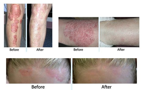 UV light treatment for psoriasis symptoms