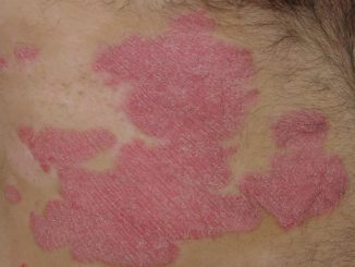 80% of Psoriasis Patients Faced Discrimination or Humiliation