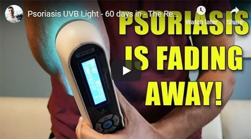 Psoriasis News Storm - UVB, Difficult to Get Close and What It's Really Like