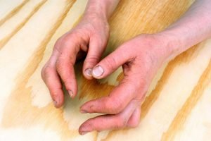 Psoriatic Arthritis News